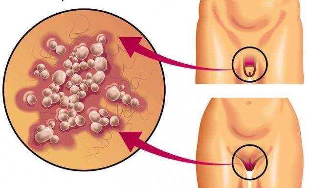 Лечение интимного герпеса у мужчин в домашних условиях