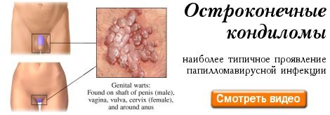 Папилломавирус у мужчин лечение в домашних условиях