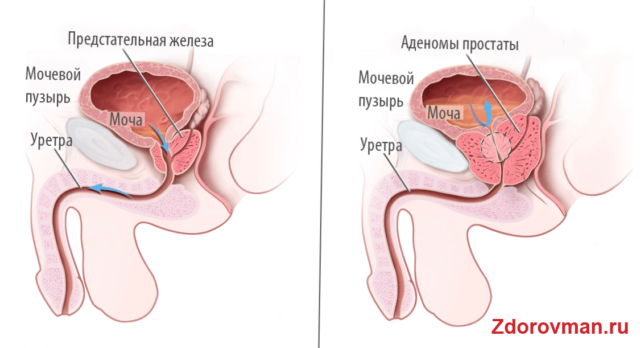 Аденома и простата лечение в домашних условиях