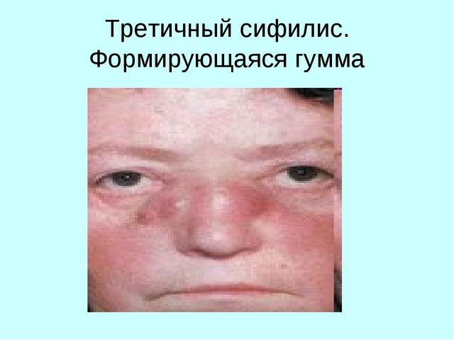 Первые признаки сифилиса: как проявляется заболевание
