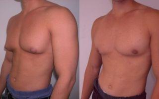 Почему происходит увеличение груди у мужчин?