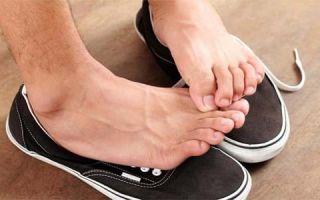 Запах пота от ног у мужчины: как вылечить