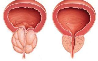 Распространенные болезни простаты и их симптомы
