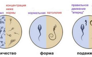 Чем опасна для мужчины нормозооспермия с агрегацией