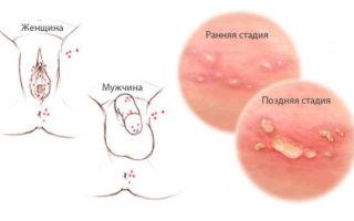 Появление прыщей на животе у мужчин: причины и лечение