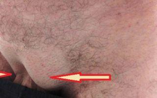 Что означает шишка в паху у мужчин справа