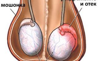 Почему болит правое яичко и что делать?