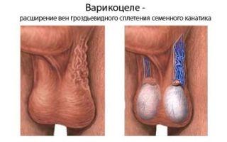 Варикоз яичек: симптомы и лечение у мужчин