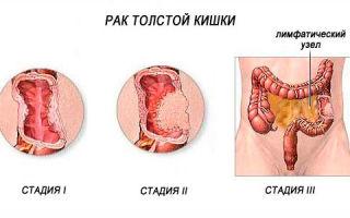 Рак прямой кишки и его симптомы