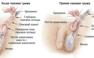 Грыжа на яичках у мужчин и возможности ее лечения