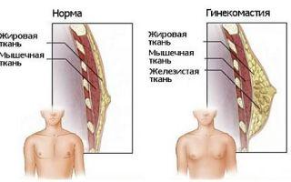 Причины появления и лечение уплотнений в груди у мужчин