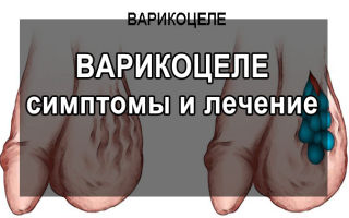 Варикоцеле у мужчин: опасность, осложнение, лечение