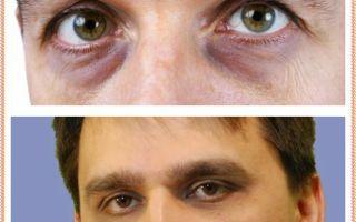 Отчего появляются мешки под глазами у мужчин?