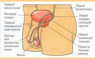 Как и зачем проводится удаление мочевого пузыря у мужчин