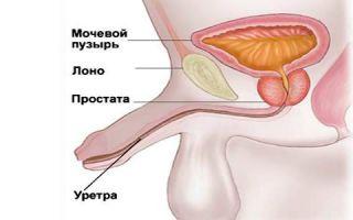 Как проявляется кольпит у мужчин: симптомы и лечение