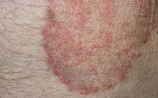 Причины красных пятен в области паха у мужчин