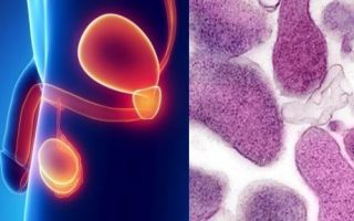 Микоплазма хоминис у мужчин: диагностика и лечение