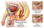Метастазы при раке предстательной железы и их локализация в организме мужчины