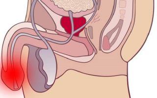 Способы лечения короткой уздечки крайней плоти