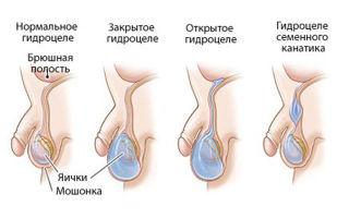 Возможно ли лечение водянки яичка без операции