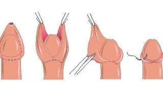 Как должно происходить заживление после обрезания?