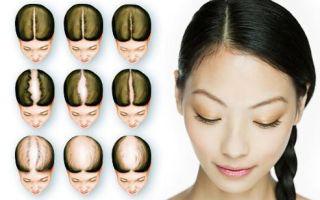 Что делать, если волосы на голове стали очень сильно выпадать?