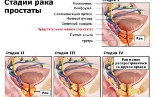 Рак предстательной железы: стадии заболевания и прогноз
