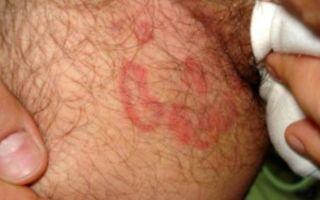 Паховая эпидермофития у мужчин: симптомы и лечение заболевания