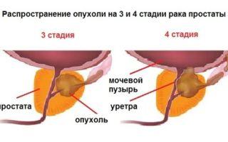 Стадии и прогнозы рака простаты