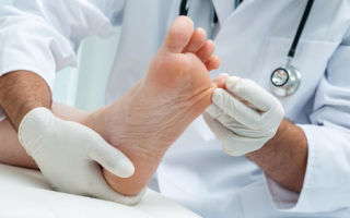 Домашние способы лечения гипергидроза стоп