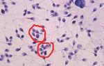 Когда агрегация сперматозоидов является патологией?