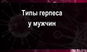Типы герпеса у мужчин, разнообразие вируса