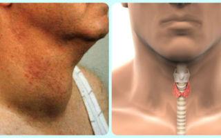Проблемы со щитовидкой: симптомы заболевания тиреоидитом у мужчин