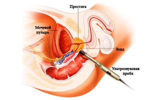 Операции на предстательной железе
