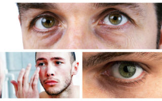 Почему возникают синяки под глазами у мужчины