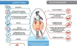 Эффективное лечение мочекаменной болезни у мужчин