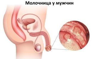 Инкубационный период развития молочницы у мужчин
