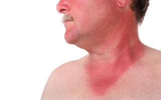 Что представляет собой мышиная лихорадка: симптомы у мужчин