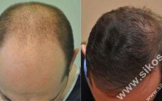 Успешность трансплантации волос у мужчин