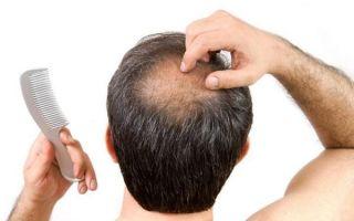 Каковы причины выпадения волос у мужчин в раннем возрасте