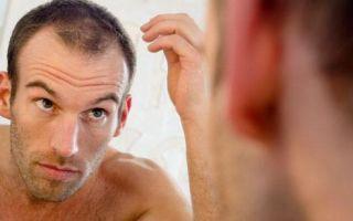 Почему лысеют мужчины: причины и лечение
