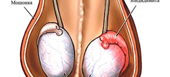Развитие gardnerella vaginalis у мужчин