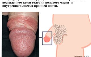 Урологические заболевания: симптомы и лечение у мужчин