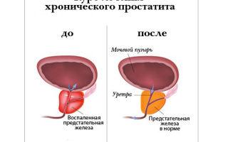 Почему возникает везикуло простатит?