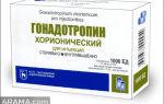 Применение гонадотропина хорионического для мужчин: отзывы о препарате