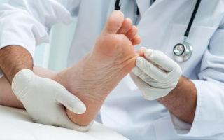 Причины и способы лечения гипергидроза
