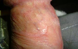 Почему трескается кожа на крайней плоти