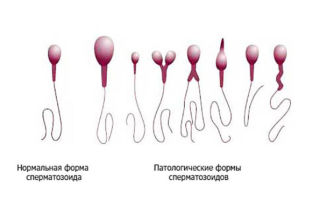 Как увеличить количество и качество сперматозоидов