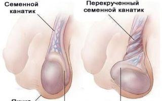 Почему у мужчин возникает боль при эрекции?