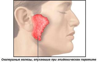 Свинка: симптомы и лечение заболевания